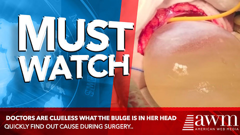Doctors Are Clueless What The Bulge Is In Her Head, Quickly Find Out Cause During Surgery