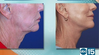 Dermacare Cosmetic Surgery offers lasting beauty with Lasting Facelift - Video