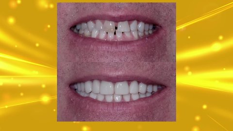Aesthetic Associates Can Help You Have Your Best Smile
