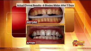 Be Thankful for Whiter Teeth This Thanksgiving - Video