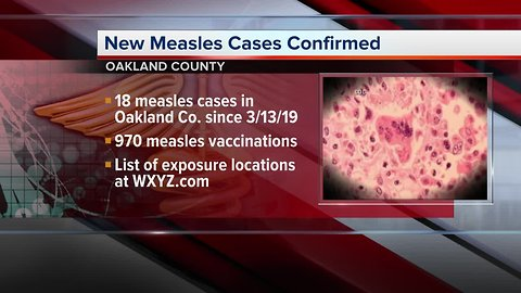 18 measles cases confirmed in Oakland County