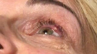 Eye stye on my little eye – Doctor performs gruesome abscess drain - Video