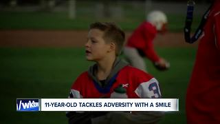 11-year-old tackles adversity with a smile - Video