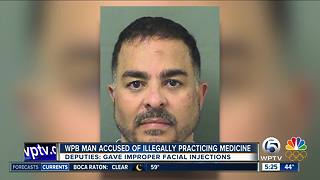 Greenacres man charged with illegal cosmetic injections - Video