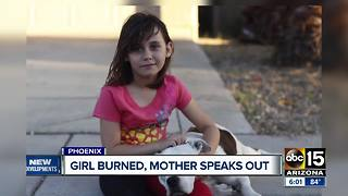 Mother speaks out after her daughter was severely burned - Video