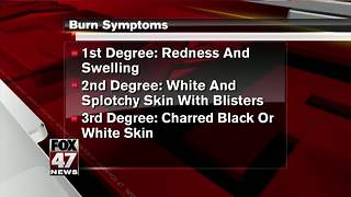 How to treat burns - Video