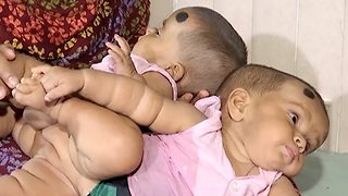 Doctors separate Bangladeshi conjoined twins in first successful surgery  - Video