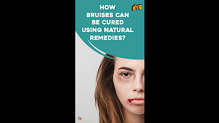 How To Get Rid Of Bruises Using Natural Remedies *