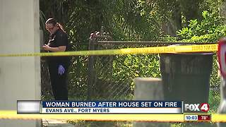 Woman burned in Fort Myers home