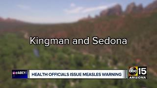 Health officials warn of potential measles exposure in northern Arizona - Video