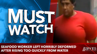 Seafood worker left horribly deformed after rising too quickly from water - Video