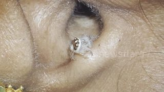 Living Spider Is Removed From A Woman's Ear After Experiencing Strong Pain - Video