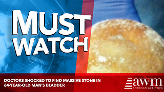 Doctors shocked to find massive stone in 64-year-old man's bladder - Video