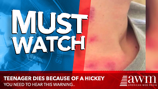 Her Teen Died Because Of A Hickey, Doctors Warn It's More Common Than You Think - Video