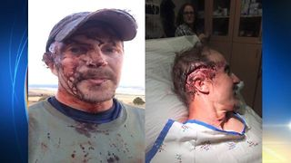 Man Attacked By Mother Grizzly, Survives, Drives To Hospital - Video