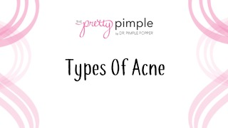 All About Acne: Types of Acne - Video