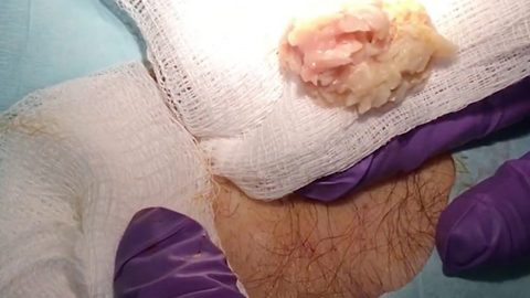 Stomach-churning moment man has giant puss filled cyst removed