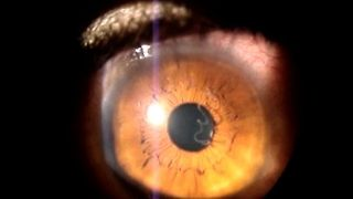 Woman Has Worm In Eyeball - Video