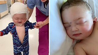 LITTLE BOY IS ALL SMILES JUST 24 HOURS AFTER UNDERGOING LIFE-SAVING SKULL RECONSTRUCTION SURGERY