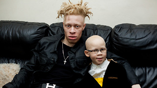 Article Headline: Model With Albinism Inspires Kids With Condition | BORN DIFFERENT - Video