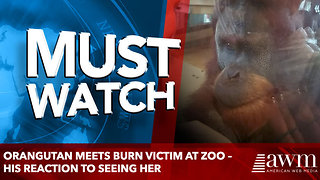 Orangutan meets burn victim at zoo – His reaction to seeing her - Video