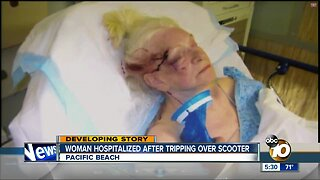 Woman hospitalized after tripping over scooter in PB