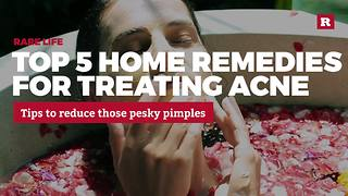 5 home remedies for treating acne | Rare Life - Video