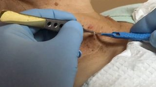 Untagged – Woman has skin tags surgically removed  - Video