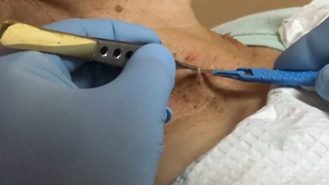 Untagged – Woman has skin tags surgically removed