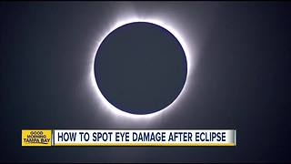 Solar eclipse: Eye damage can show later - Video
