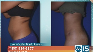 North Valley Plastic Surgery offers a tummy tuck that promises amazing results - Video