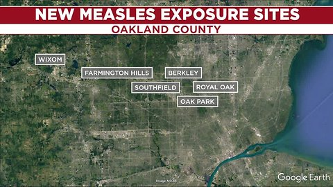18 confirmed measles cases in Oakland County