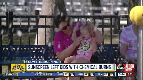 Sunblock ingredients may have caused chemical burns on baby, toddler