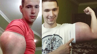 Russian Lunatic Injects Himself with OIL to Get Bigger Muscles - Video