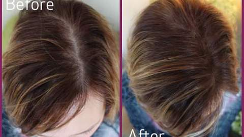 Regrows Lost Hair After 19 Days Baldness Cure Branded Too Simple To Ever Work