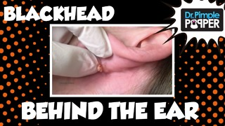 Dr Pimple Popper: You May Want to Check for BLACKHEADS Behind Your Ears... - Video