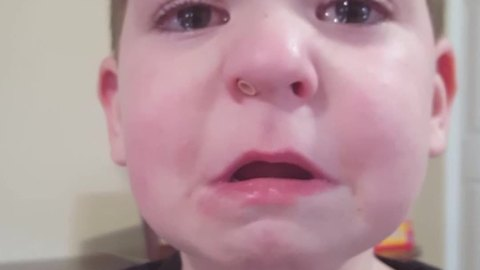Funny Boy Gets A Lego Head Stuck Up His Nose