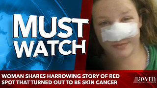 Woman shares harrowing story of red spot that turned out to be skin cancer