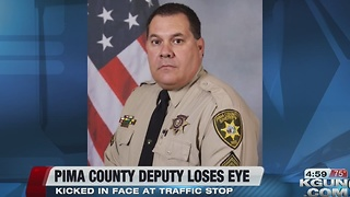 Deputy loses eye after being kicked during DUI arrest - Video