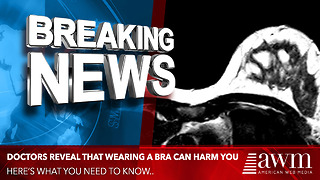 Doctors Lay Out Overwhelming Evidence That Wearing A Bra Is Actually Harming You - Video