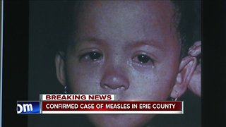 Confirmed case of measles in Erie County