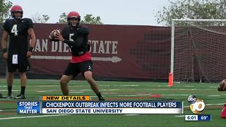 Chickenpox outbreak infects more football players - Video