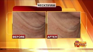 Improving Signs of Aging on the Neck - Video