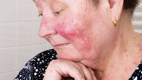Skin Conditions That Are Commonly Mistaken for Acne