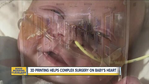 3-D print helps doctors at the Cleveland Clinic perform first-ever ventricle switch on 9-month-old's heart