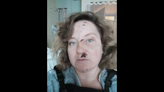 Oceanside hit-and-run victim makes plea for clues from hospital bed