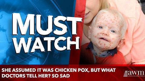 She Assumed It Was Chicken Pox, But What Doctors Tell Her? SO SAD