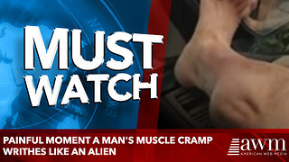 Painful moment a man's muscle cramp writhes like an alien - Video