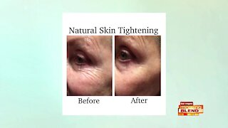 Tighten Skin Without Surgery