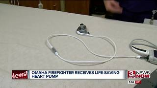 Omaha firefighter receives life-saving heart pump - Video